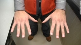 George Zimmermans hands after the shooting of Trayvon Martin