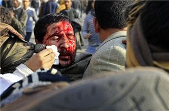 Egyptian wounded
