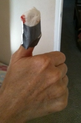 thumb patched up after shooting injury