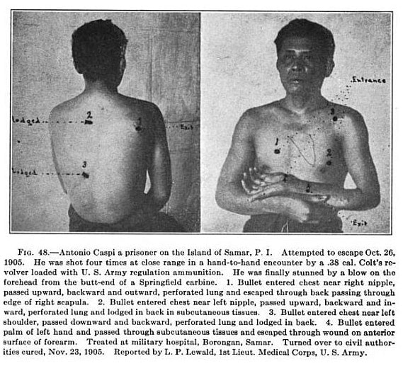 Moro warrior with .38 wounds.