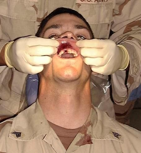 Shot in the tooth.