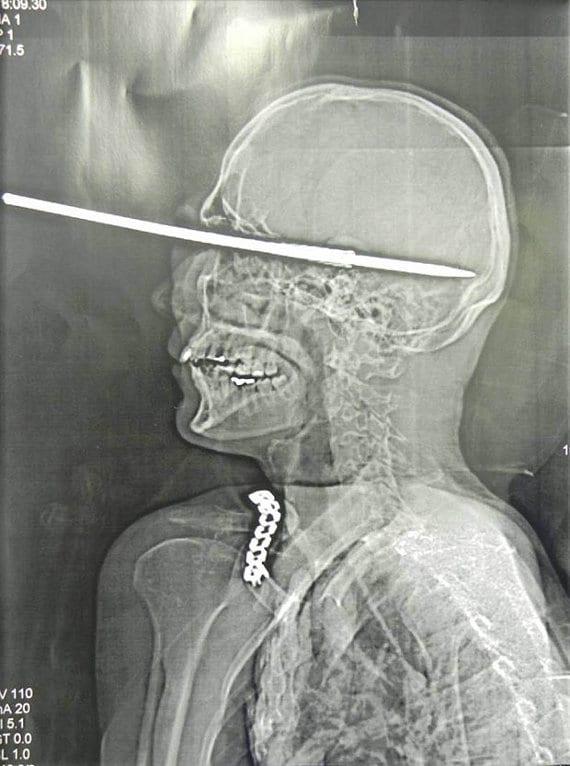 Harpoon thru brain (2)