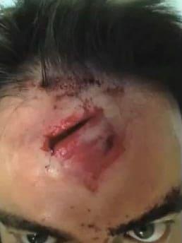 gash on head from shrapnel