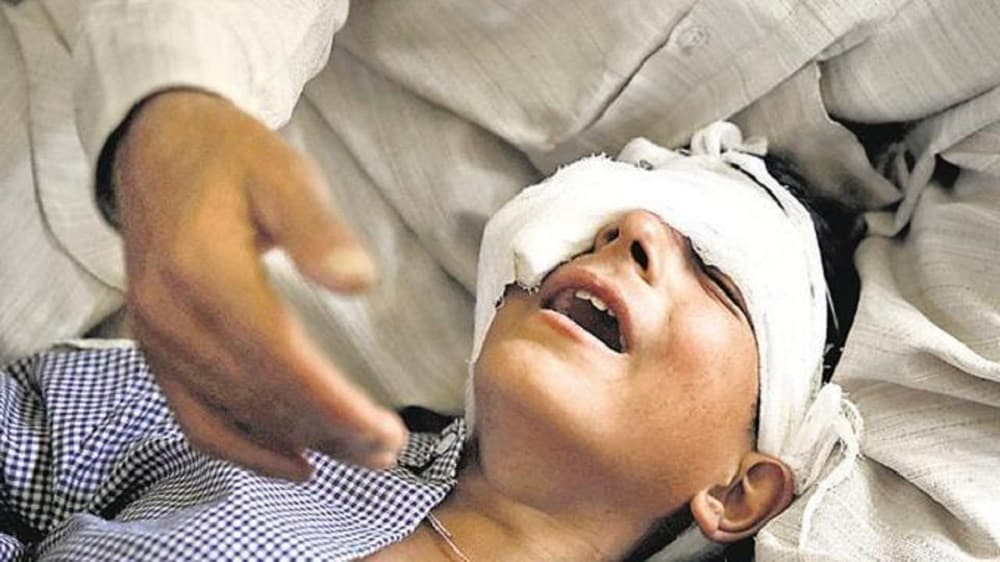 A father holds his son, said to have been injured by security forces with pellet-firing shotguns in Srinagar, Kashmir, on Aug. 18, 2016. (Photo: Reuters)