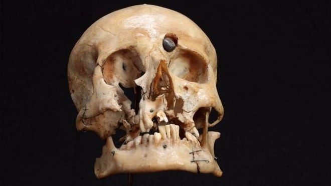 The skull of Pvt. Thomas Hurdis.