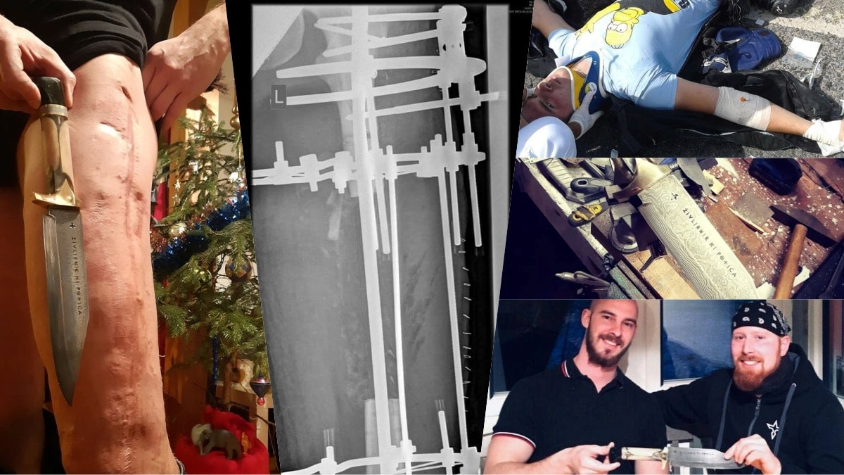 Guy shatters femur, uses shards for possibly the most metal knife ever